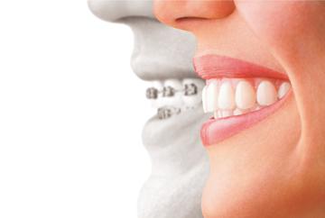 佐世保市 |矯正歯科医院 マウスピース専門 成人・小児予防 専門歯科医