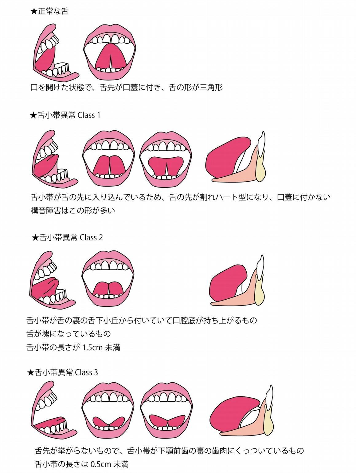 舌小帯異常クラス